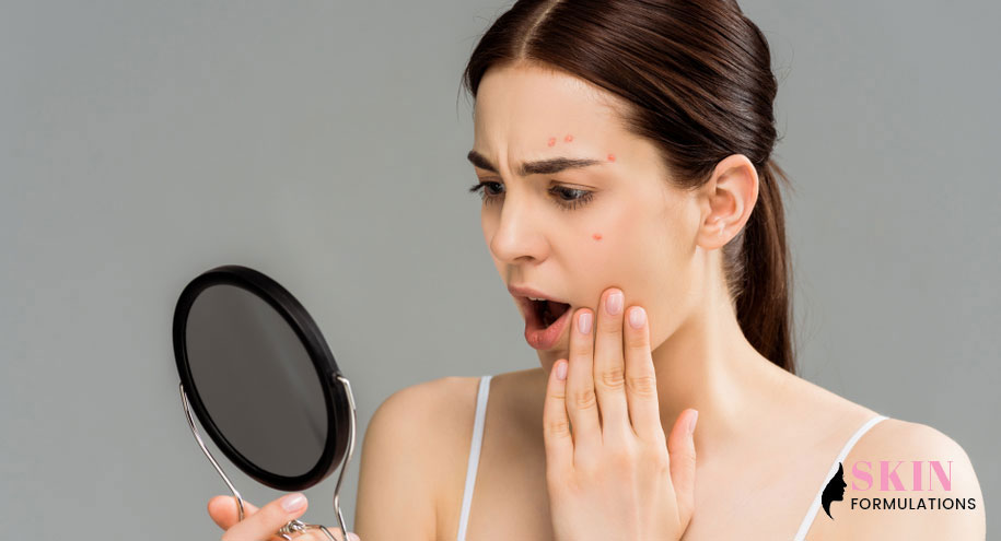 Shocked Young Woman Acne on Face