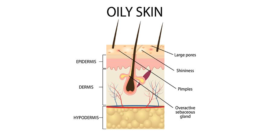 Oily skin problem