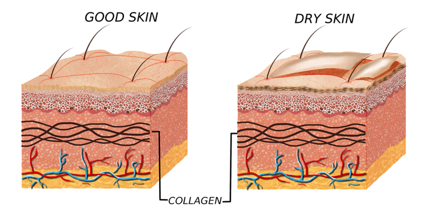 Overview of dry skin