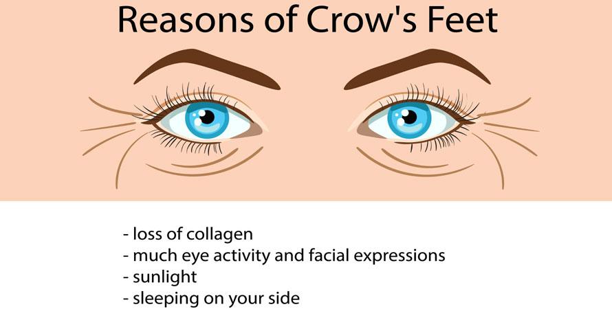 causes of crow's feet