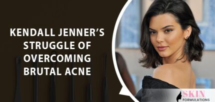Kendall Jenners Struggle of Overcoming Brutal Acne