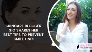 Prevent Smile Lines by Skincare Blogger Gio